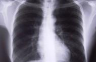 El uso regular de desinfectantes aumenta el riesgo de EPOC en las enfermeras