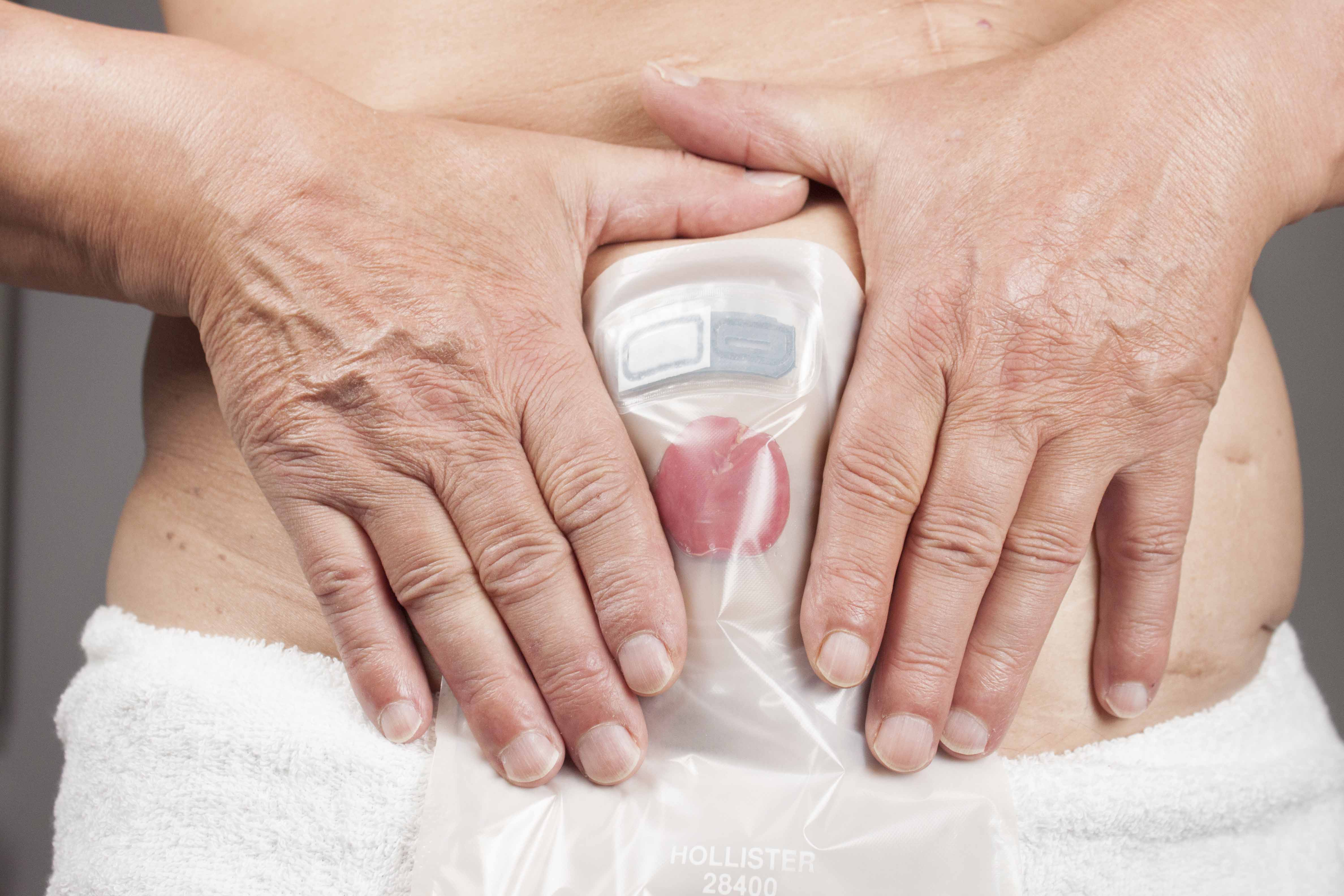 OSTOMIAS DEFINICION DOWNLOAD