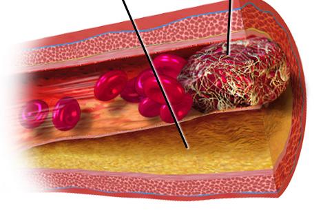 La trombosis es la segunda causa de muerte en pacientes con cáncer