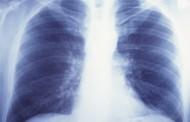El de pulmón, cáncer más mortal entre las mujeres de los países desarrollados