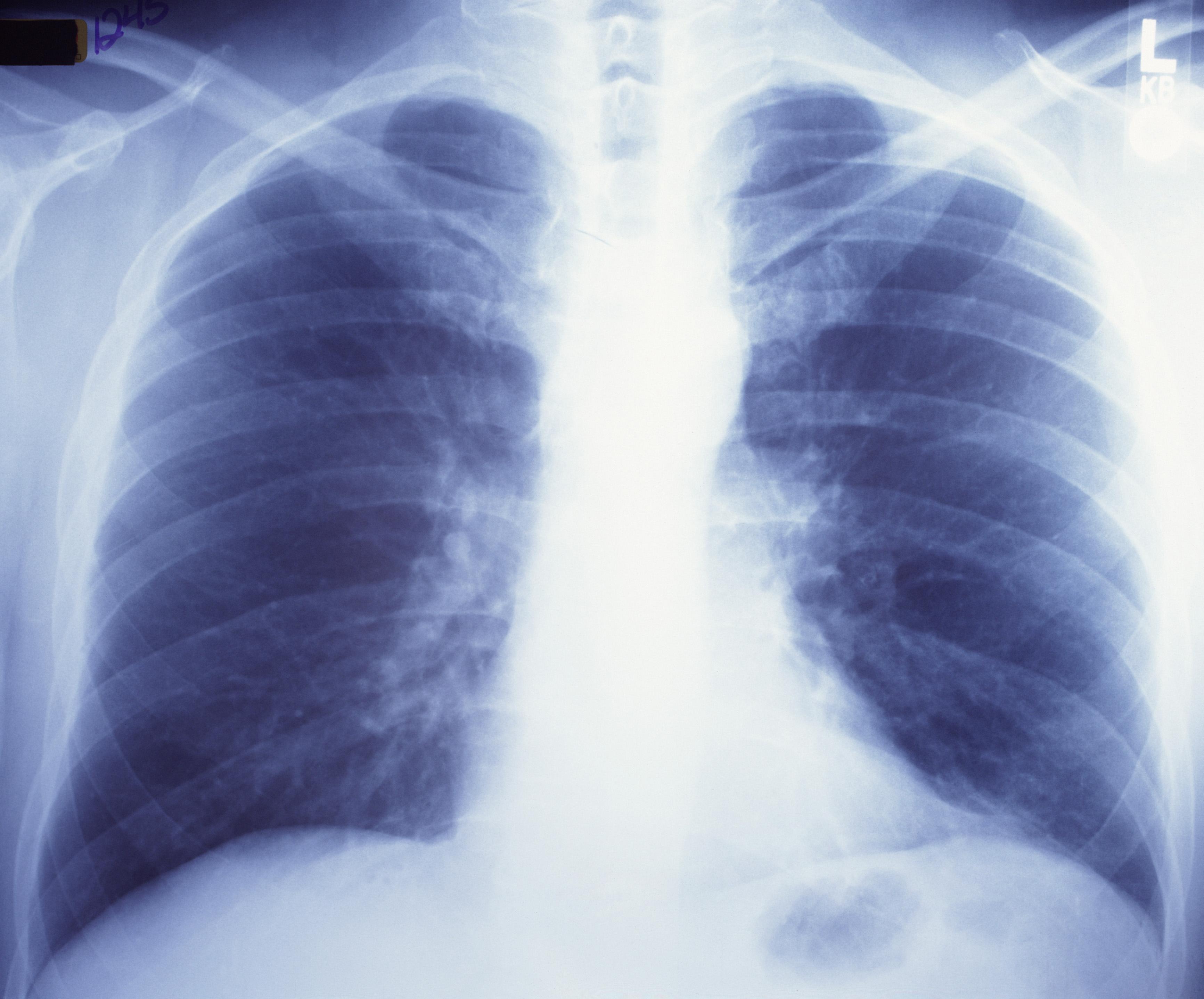Más de 15.000 personas mueren de neumonía al año en España