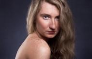 Investigadores del CNIO activan el crecimiento del cabello mediante la modificación de las células inmunes