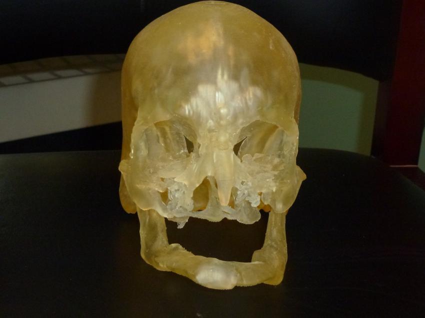 Modelos impresos en 3D para facilitar el trasplante de rostro