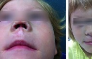 Médicos españoles reconstruyen la nariz de una niña a partir del cartílago y piel de su propia oreja