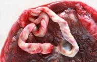 La placentofagia y otras recomendaciones de las doulas