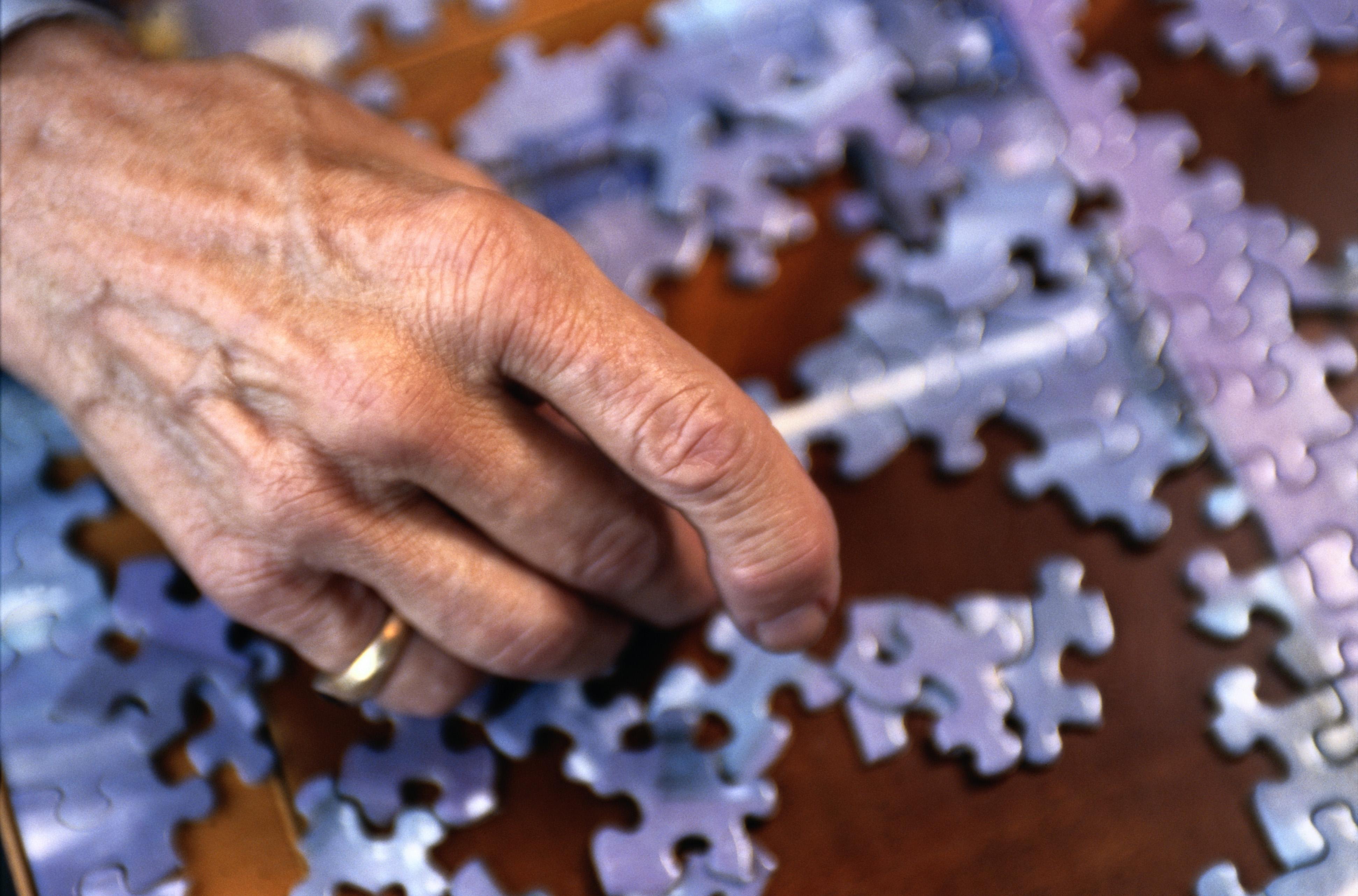 Un 10% de las personas mayores de 70 años en España padece insuficiencia cardiaca