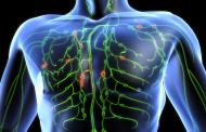 Tras superar un linfoma de Hodgkin aumenta el riesgo de sufrir enfermedades cardiovasculares