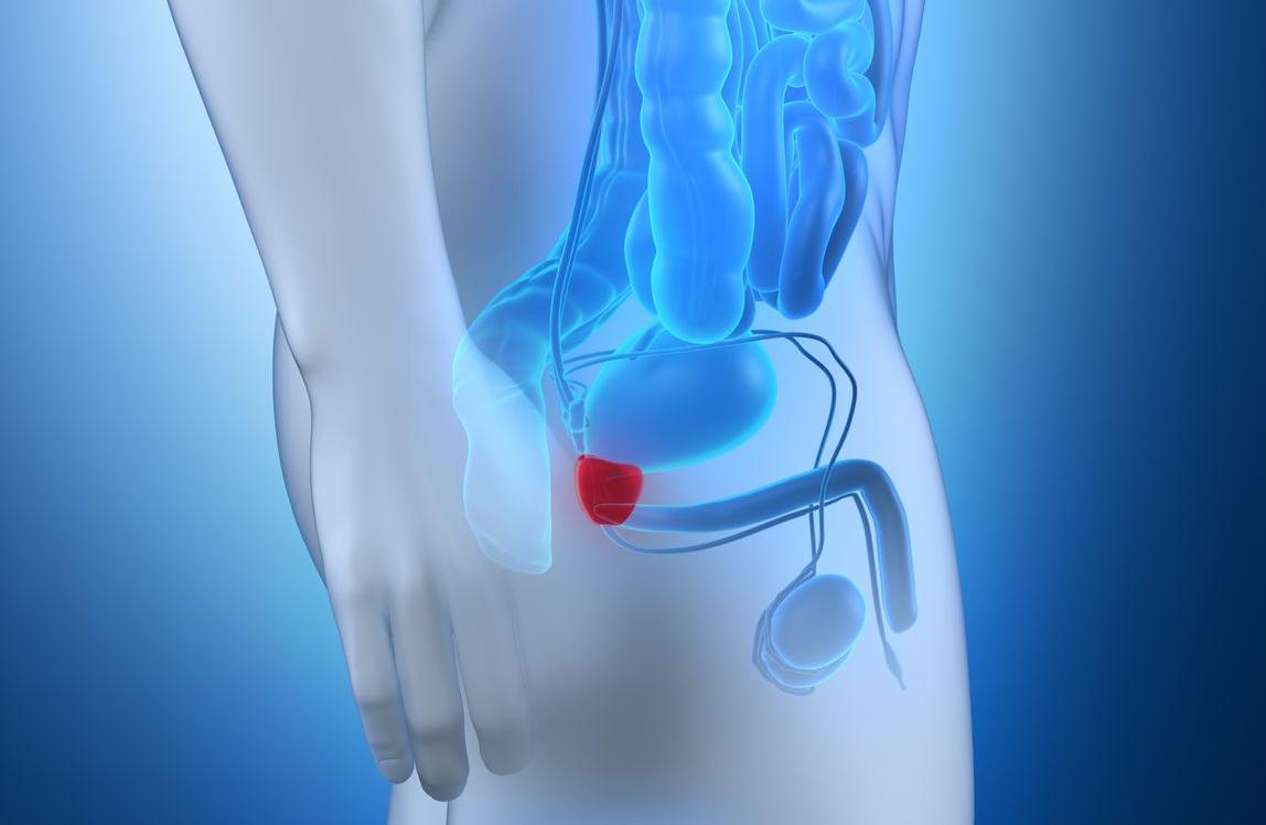 cáncer de próstata más reciente