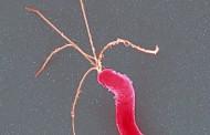 La bacteria que causa las úlceras de estómago puede ayudar a prevenir el cáncer de estómago