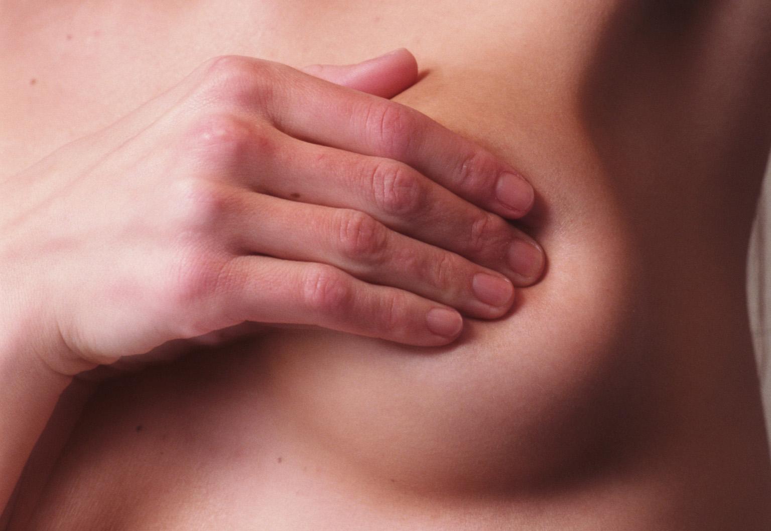 Investigadores españoles descubren un nuevo gen implicado en el cáncer de mama familiar