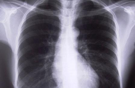 Descubren un mecanismo celular implicado en la hipertensión arterial pulmonar