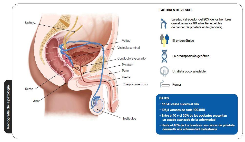 Radiografia de la enfermedad. Click en la imagen para ampliar.