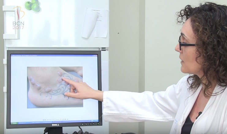 La dermatóloga muestra una imagen de la reacción alérgica provocada por un tatuaje