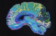 Altas dosis de resveratrol actúan sobre un biomarcador del alzhéimer