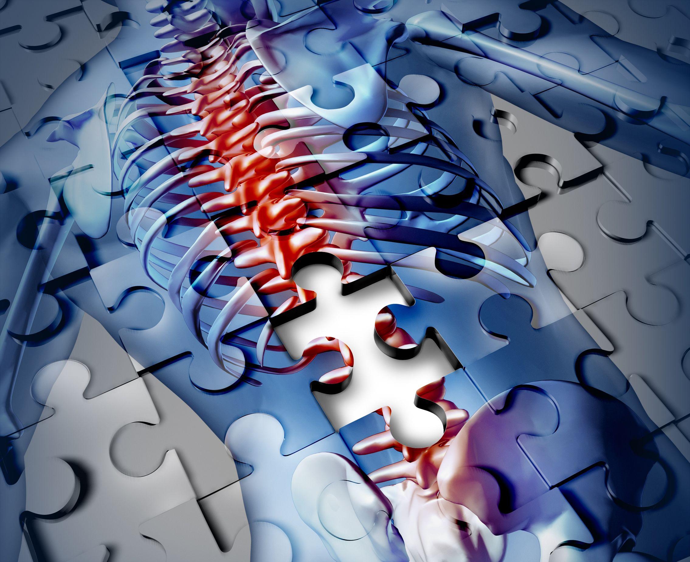 Un trastorno poco frecuente ofrece una hoja de ruta para comprender las raíces de las enfermedades inflamatorias