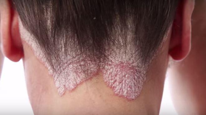 Un tratamiento con anticuerpos eficaz para la psoriasis