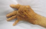 Investigadores descubren una nueva estrategia para tratar la artritis