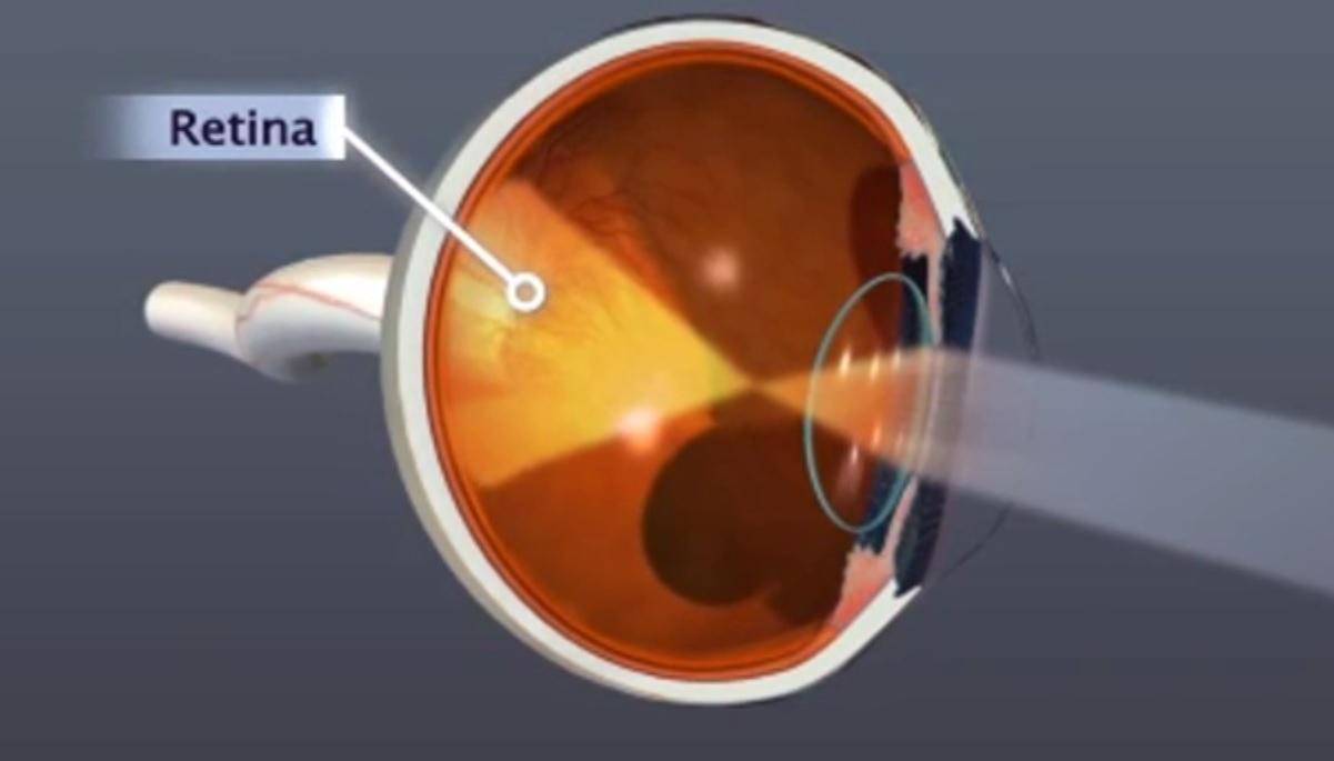 Las enfermedades cerebrales se manifiestan en la retina del ojo