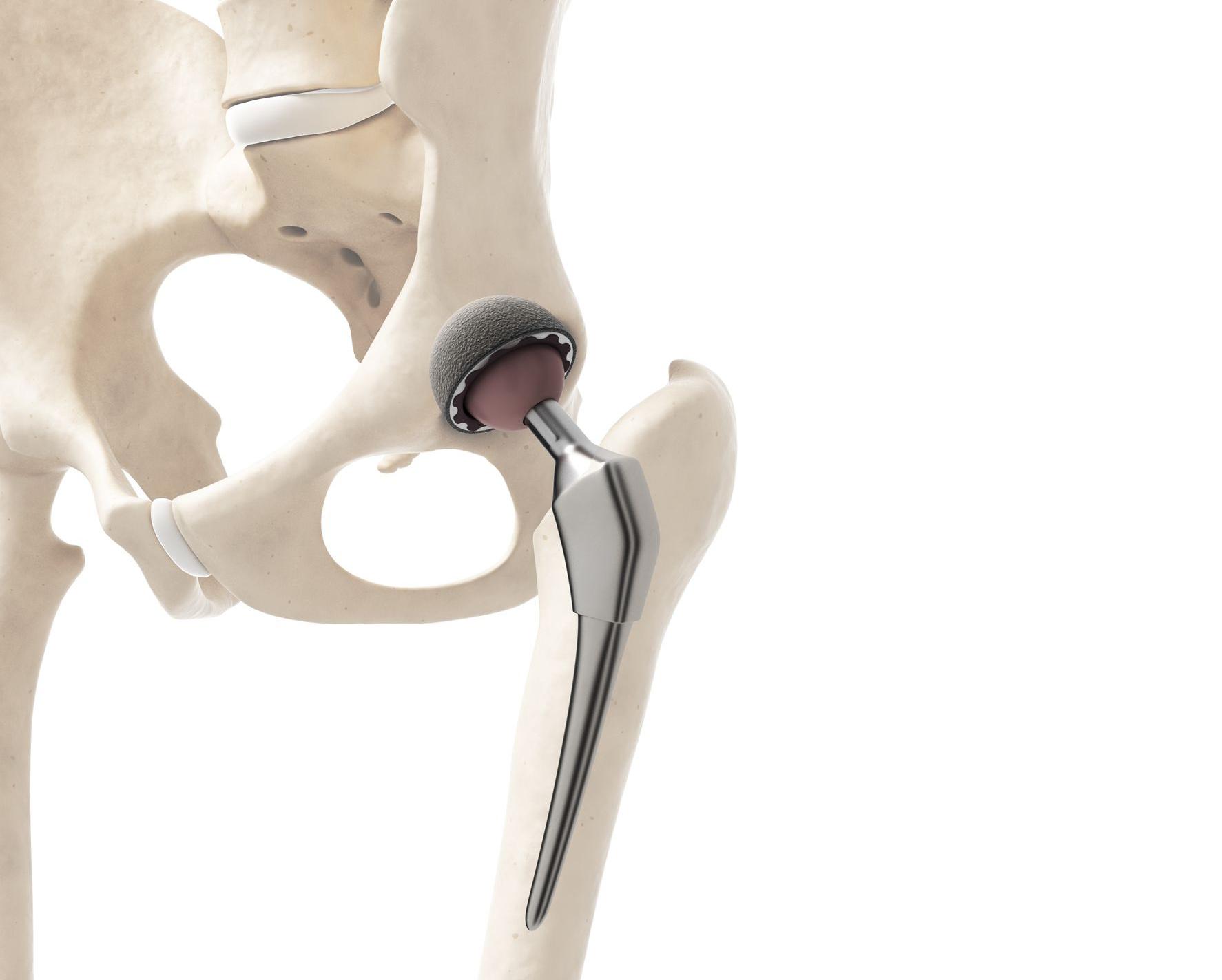 Charlas enfermeras para ayudar a pacientes a punto de operarse de prótesis de cadera o rodilla