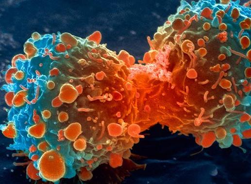 Desarrollan una tecnología que facilitará la detección del cáncer de forma fiable