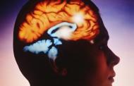 Un estudio genético revela el origen biológico de la esquizofrenia