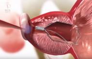 Un muelle urológico resuelve los problemas de la hiperplasia benigna de próstata