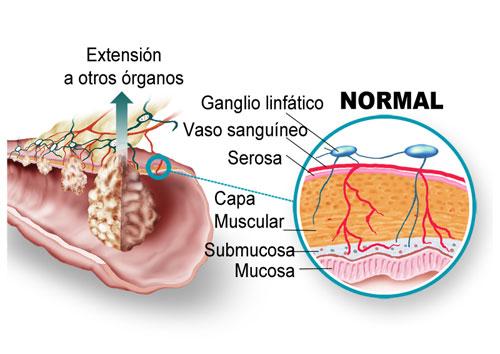 El cribado del cáncer de colon en España sólo cubre al 27% de la población diana