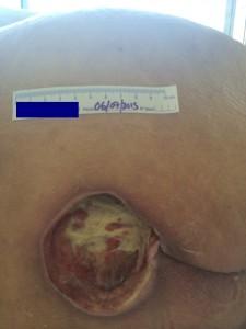 UlceraDespues