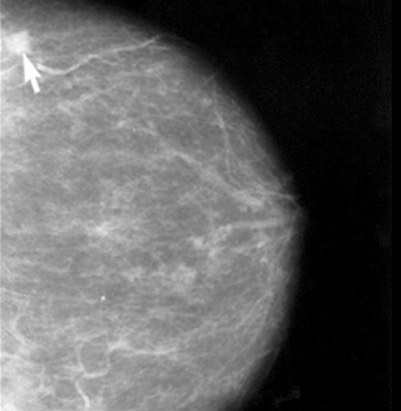La densidad del pecho es el principal factor de riesgo para desarrollar cáncer de mama