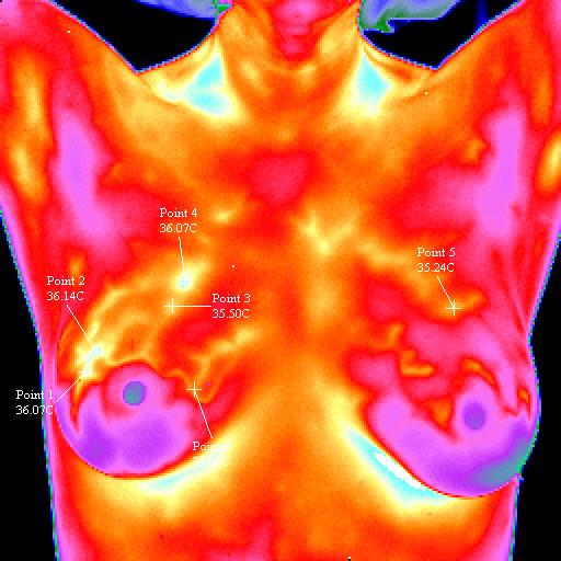 Las mamografías han reducido la mortalidad por cáncer de mama un 35%