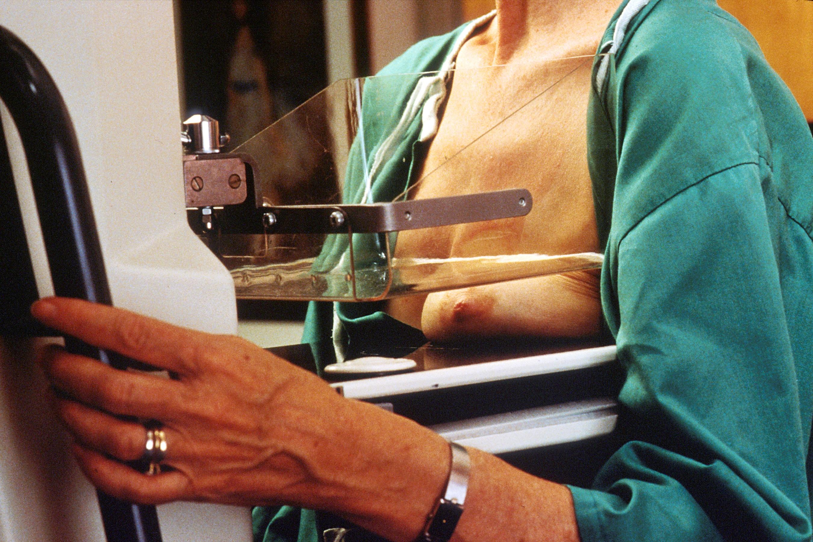 Las mujeres con baja densidad de las mamas tienen un peor pronóstico en caso de cáncer