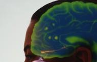 La enfermedad cerebrovascular incrementa el riesgo de alzhéimer
