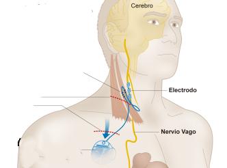 Resultado de imagen de imagenes nervio vago