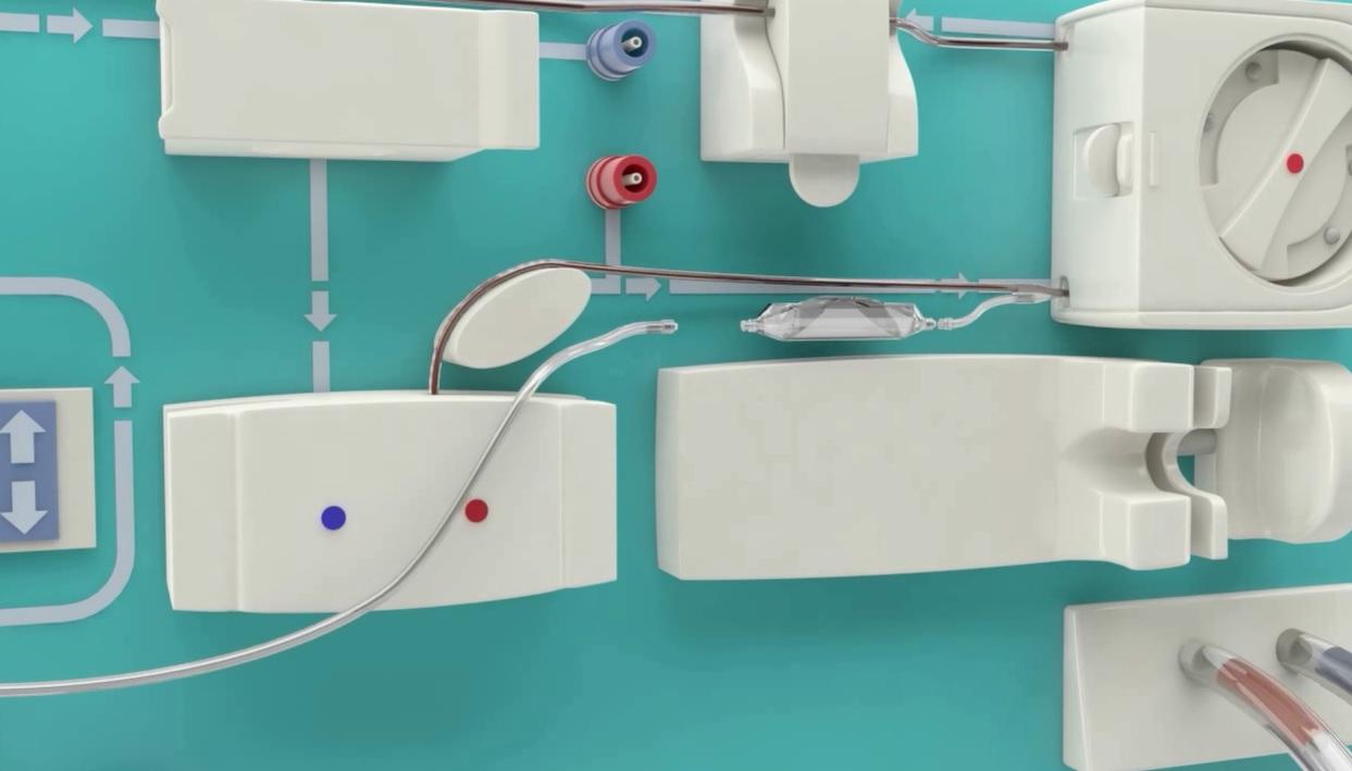 Un enfermero inventa una válvula para evitar la entrada de aire durante la diálisis