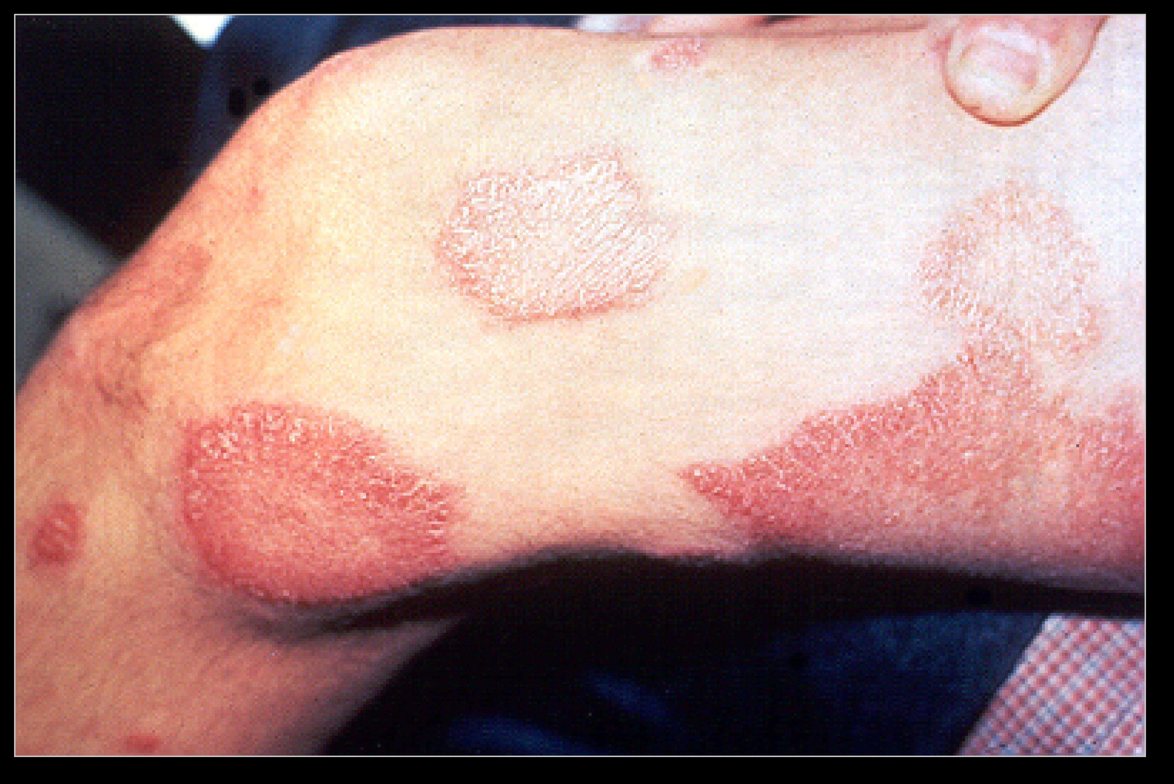 El CIE premia la lucha contra la lepra