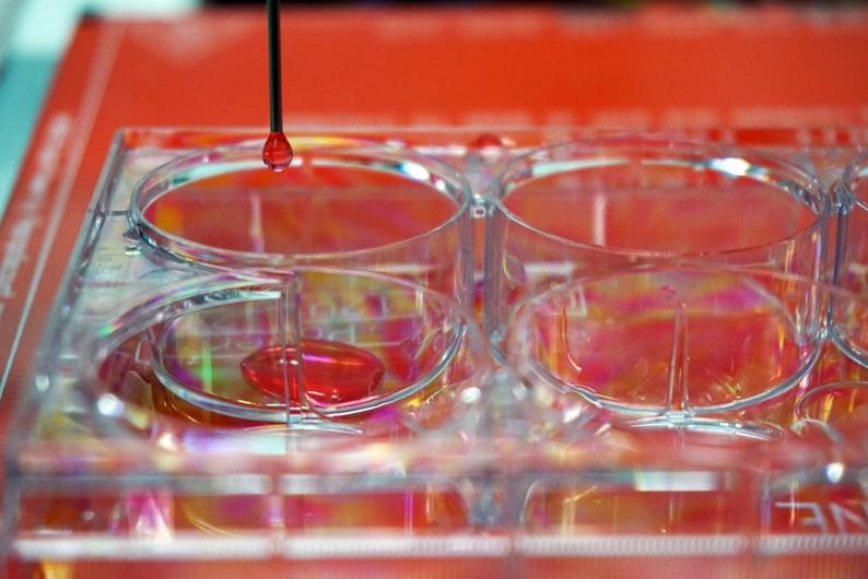 Científicos españoles desarrollan una bioimpresora 3D de piel humana para trasplantes o investigación