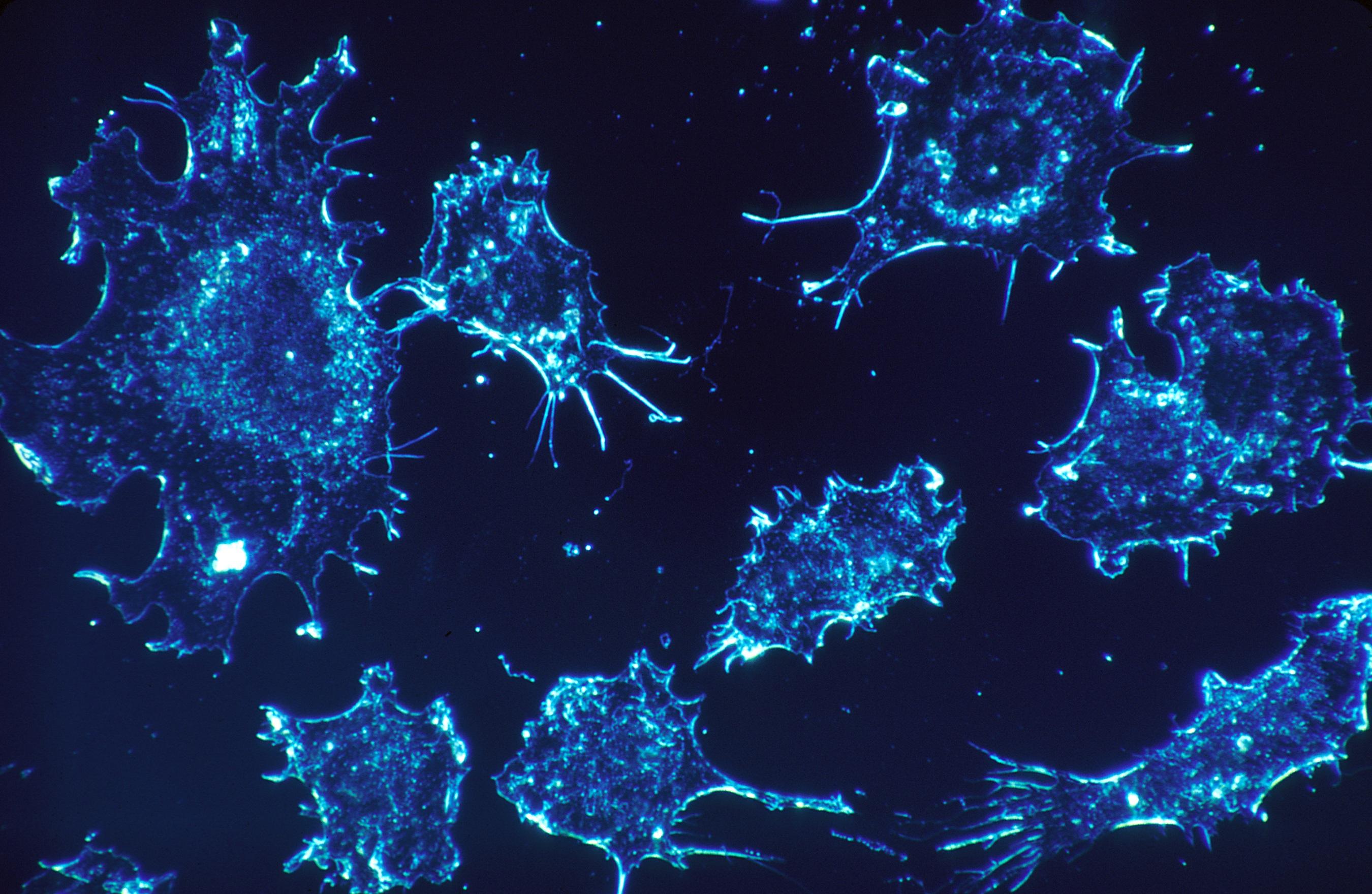 Reducir aminoácidos de la dieta retrasa el crecimiento del cáncer