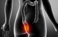 Desarrollan una herramienta para predecir la respuesta al tratamiento en cáncer de recto