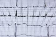 Una sola píldora para tratar la presión arterial y el colesterol reduce el riesgo de enfermedad cardiovascular