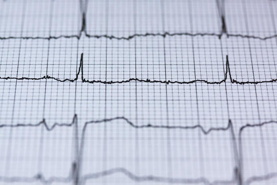 Electrocardiogramas en la ESO para prevenir la muerte súbita