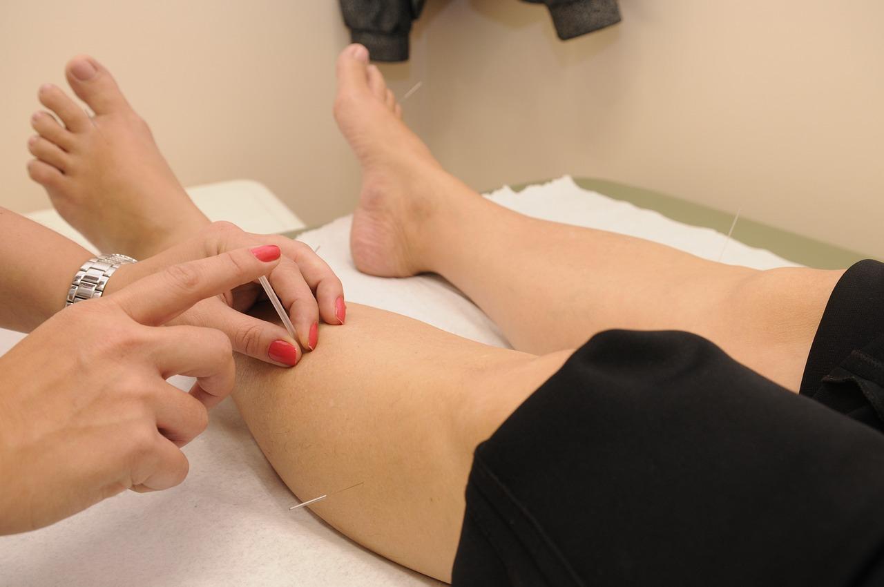 La acupuntura alivia los dolores articulares en las mujeres con cáncer de mama