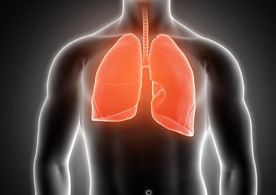 Juntos Sumamos Vida busca soluciones a las necesidades no cubiertas en cáncer de pulmón
