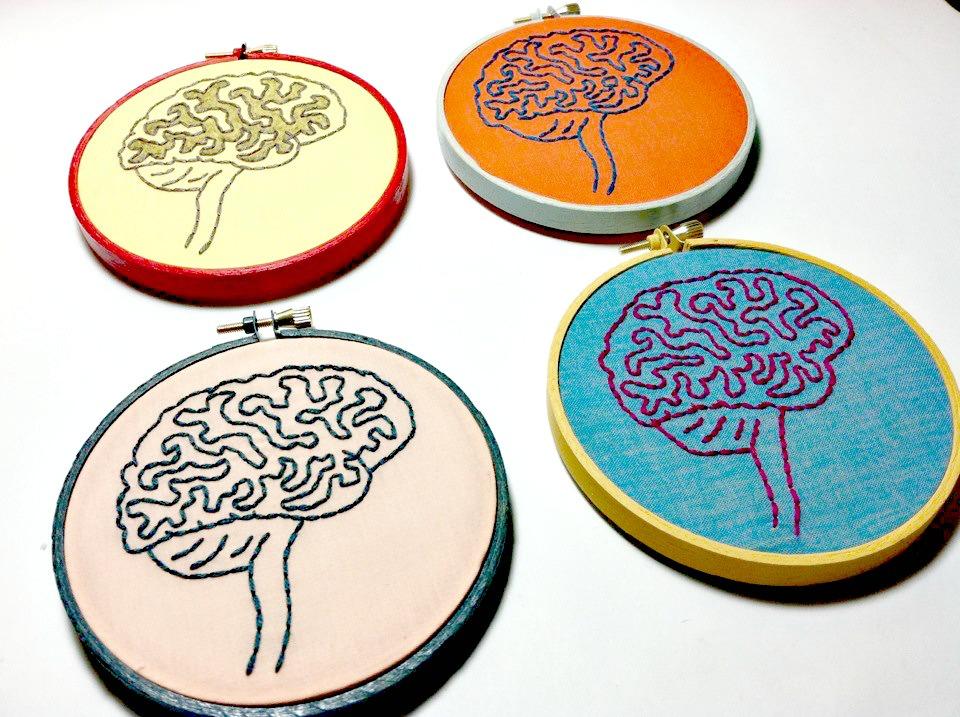 El fallo de un sistema de limpieza del cerebro, posible impulsor del Alzheimer