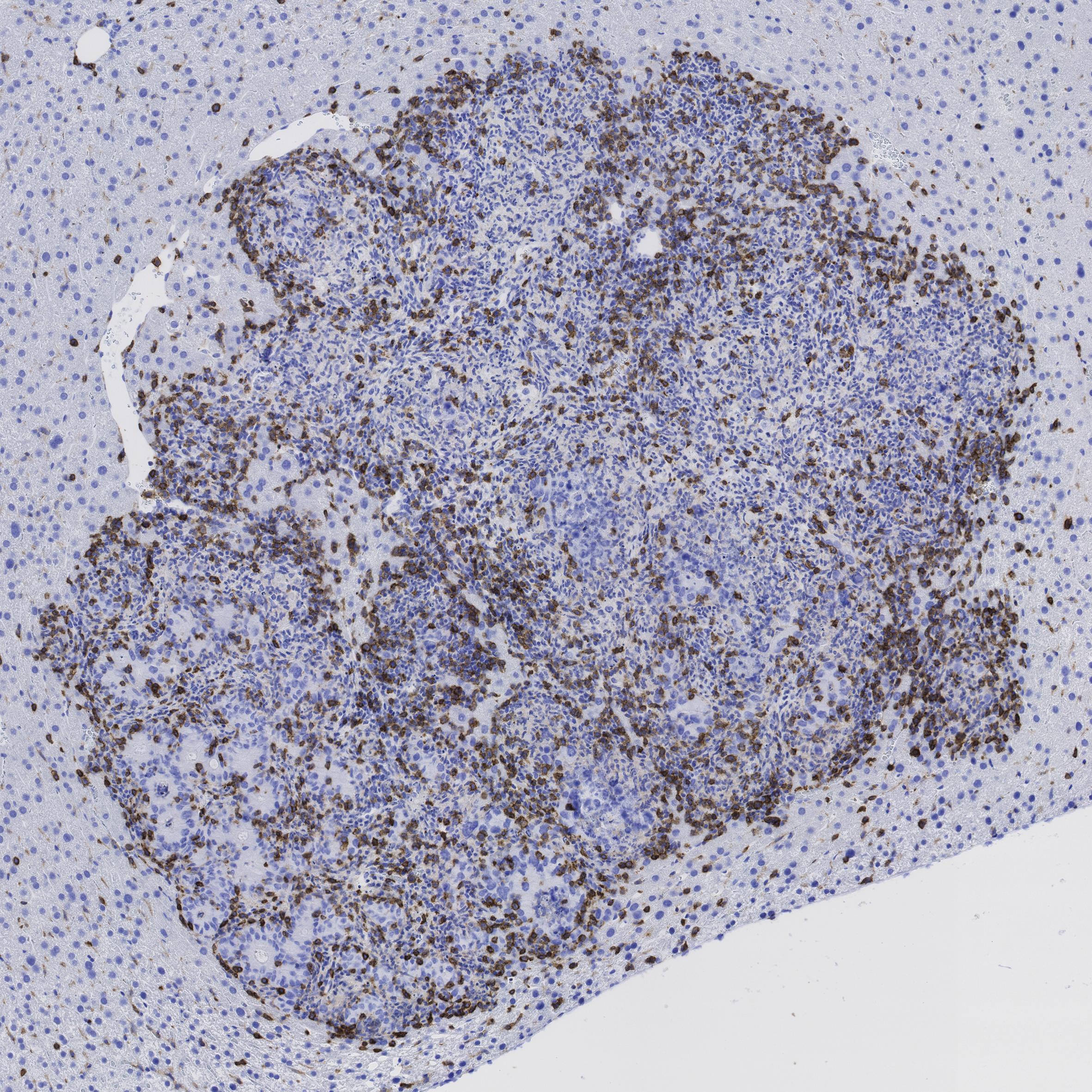 La inmunoterapia, nueva esperanza contra el cáncer de colon