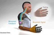 Restaurar la sensación de movimiento en pacientes con amputación de miembro superior