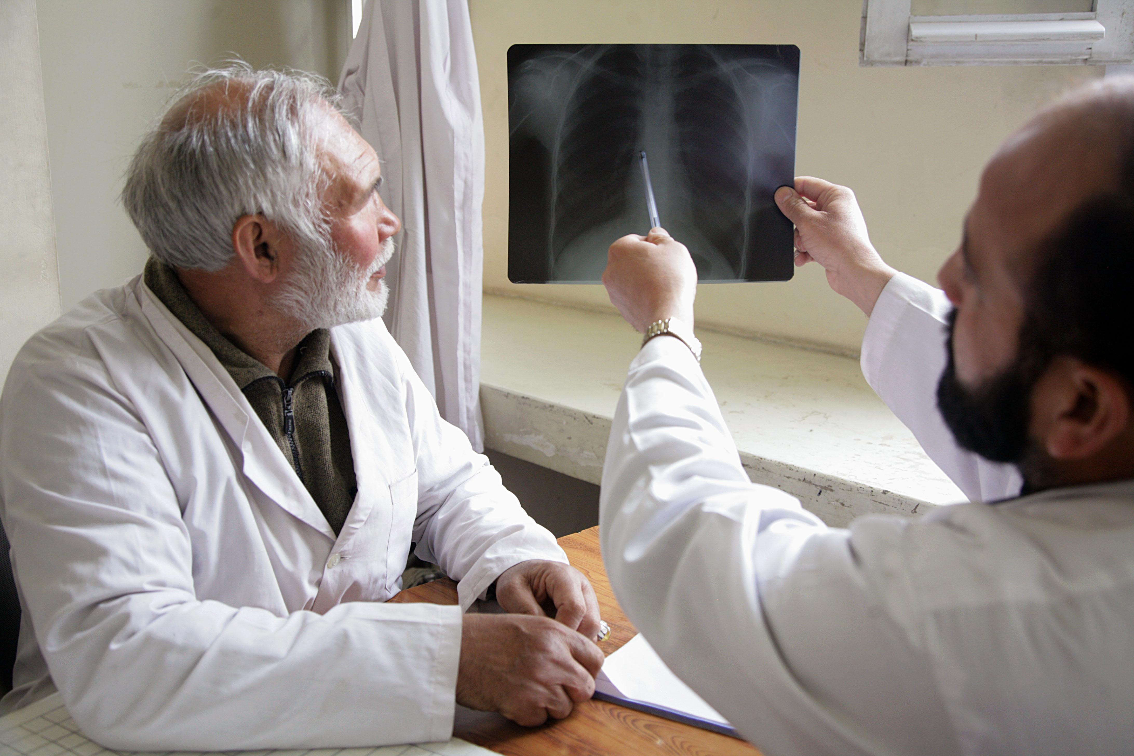 Las enfermeras apoyan las nuevas directrices de la OMS para el tratamiento de la tuberculosis