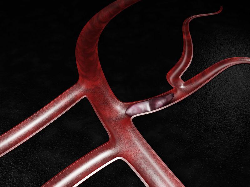 Los nuevos anticoagulantes orales se vinculan a un menor riesgo de hemorragia grave