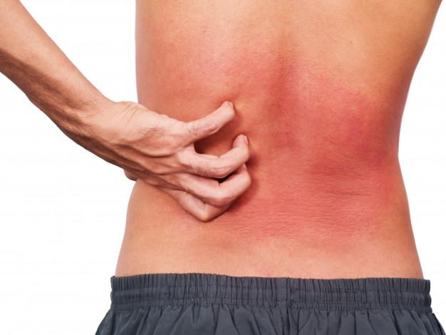Las reacciones alérgicas pueden protegernos del cáncer de piel