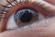 El estudio del fondo de ojo puede prevenir la aparición de eventos arteriales en pacientes con COVID-19