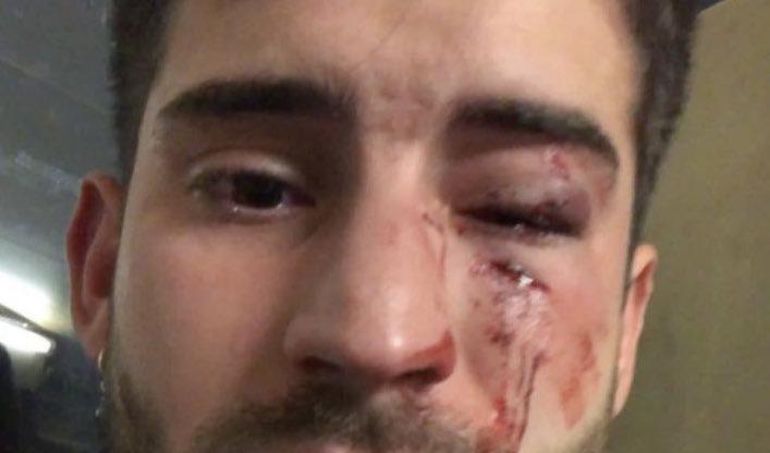 El CGE condena la brutal agresión homófoba a un enfermero en el metro de Barcelona